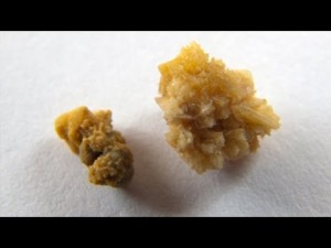 Natural Remedies for Kidney Stones