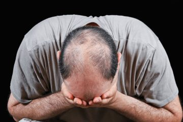 Genetic Factor Associated with Baldness